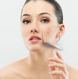 Using CBD for Rosacea and skin conditions
