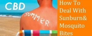Treating sunburn and bug bites with CBD