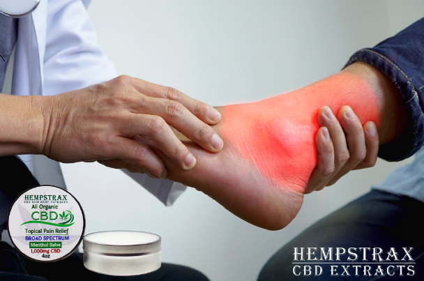CBD for fighting Gout